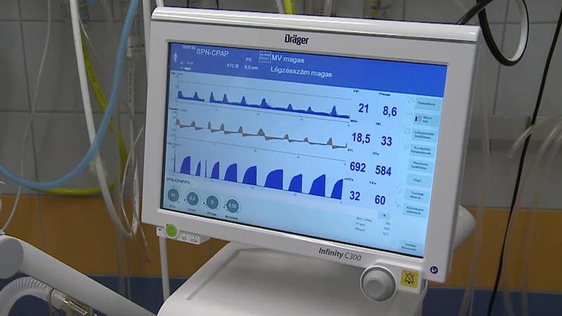 Modern lélegeztetőgépek az Aneszteziológiai és Intenzív Terápiás Intézetben