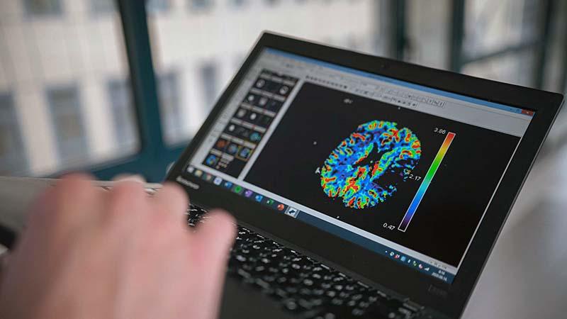 Artificial intelligence helps the Transdanubian stroke network