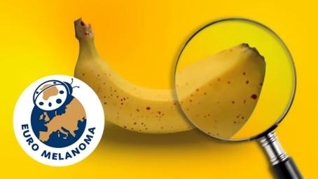 Euromelanoma kampány – május 8-12.