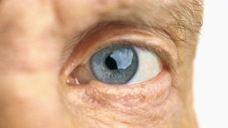 Korunk egyik legfélelmetesebb betegsége, a makuladegeneráció