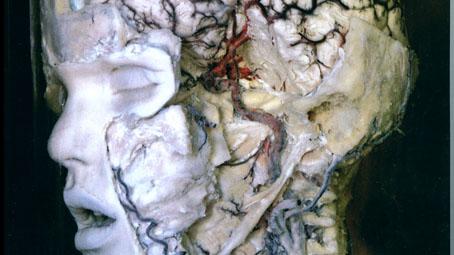 A pécsi anatómiai gyűjtemény
